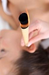 Medycyna alternatywna -  świecowanie uszu